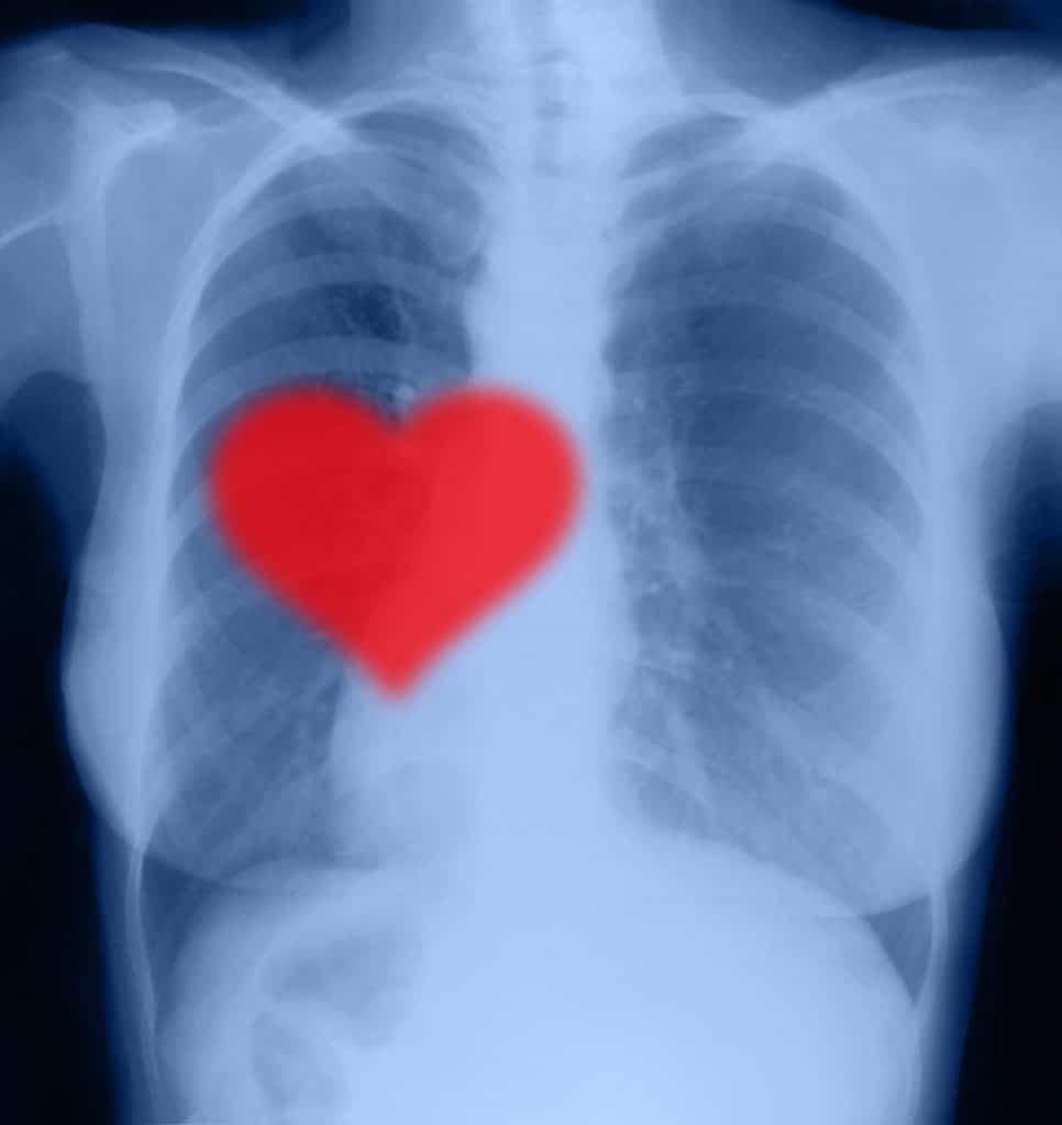 Hart vorm röntgen gekke dingen kinderen dachten